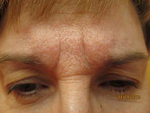 botox-before